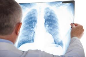 Doktor untersucht Luntenbild